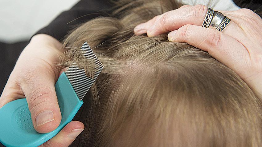 kutu rambut